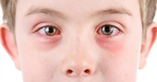 Protect yourself against pink eye